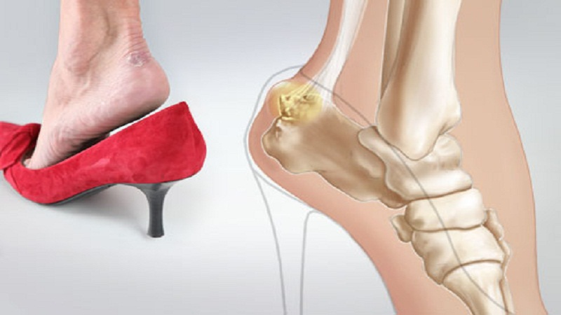 Medical condition of your feet